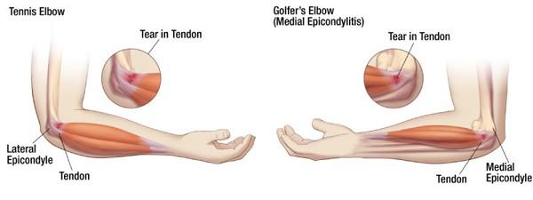 Tennis & Golfer's Elbow Prevention & First Aid | Peak Ergonomics